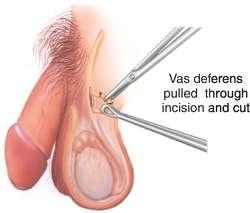 Medical term masturbate